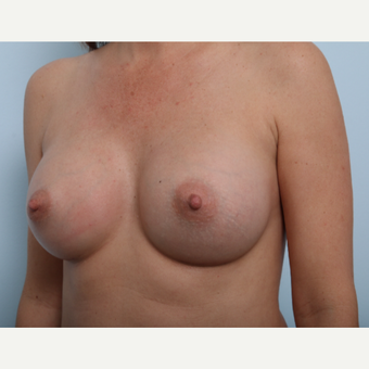 Breast Augmentation after 3459760