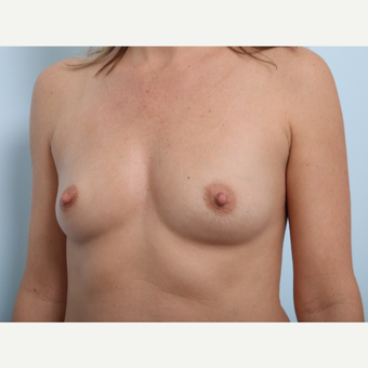 Breast Augmentation before 3459760