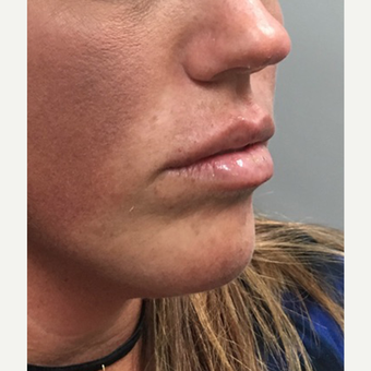 25-34 year old woman treated with Juvederm after 3684472