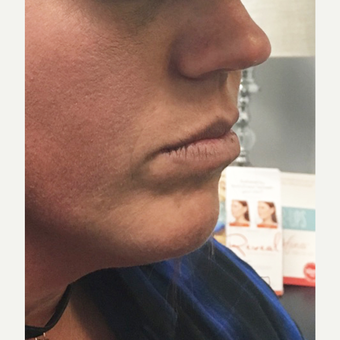 25-34 year old woman treated with Juvederm before 3684472