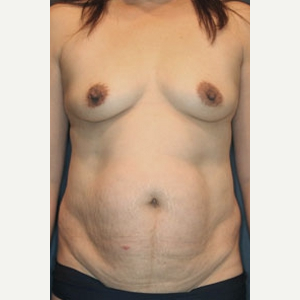 45-54 year old woman treated with Mommy Makeover before 3519830