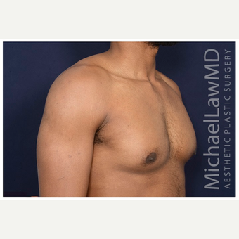 25-34 year old man treated with Male Breast Reduction after 3174095