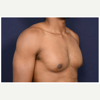25-34 year old man treated with Male Breast Reduction before 3174095