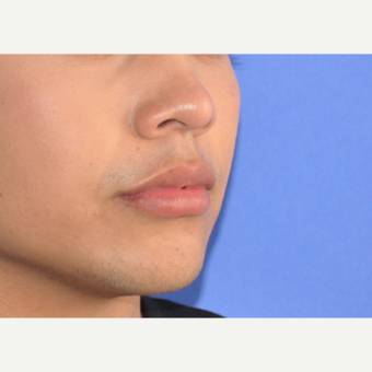 18-24 year old man treated with Lip Augmentation after 3219216