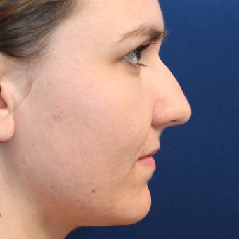 Non Surgical Nose Job with Bellafill