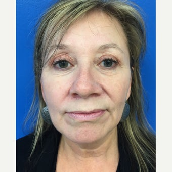 45-54 year old woman treated with Facelift before 2618415