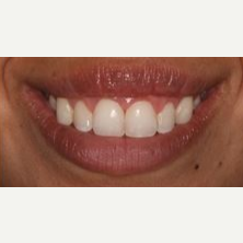 35-44 year old woman treated with Lip Lowering after 3027505