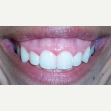 35-44 year old woman treated with Lip Lowering before 3027505
