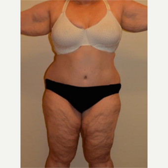 45-54 year old woman treated with Tummy Tuck after 3658166