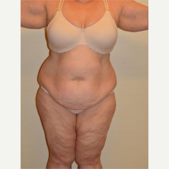 45-54 year old woman treated with Tummy Tuck before 3658166