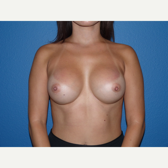 Breast Implants after 3807207