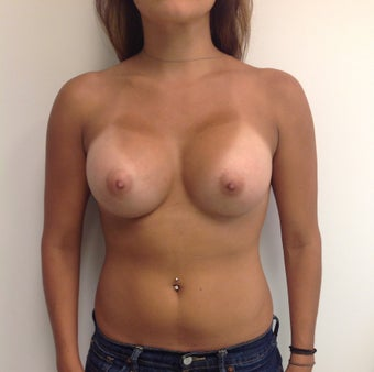 Breast Augmentation after 1652414