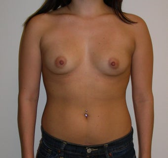 Breast Augmentation before 1652414