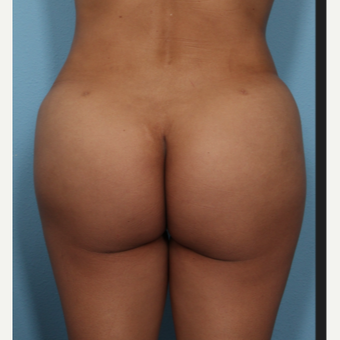 35-44 year old woman treated with Brazilian Butt Lift after 3487272