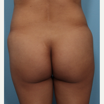 35-44 year old woman treated with Brazilian Butt Lift before 3487272