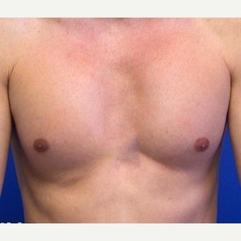 35-44 year old man treated with Pec Implants