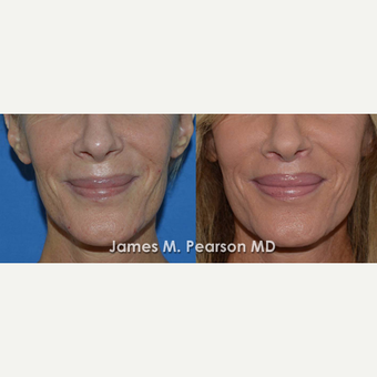 45-54 year old woman treated with Lip Lift before 3117316