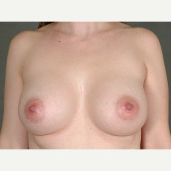 25-34 year old woman treated with Breast Augmentation after 3219417