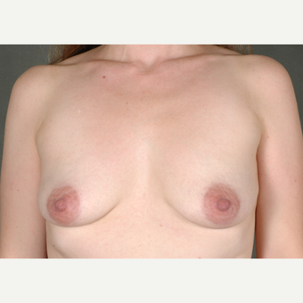 25-34 year old woman treated with Breast Augmentation before 3219417