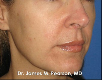 Melasma Treatment after 910410