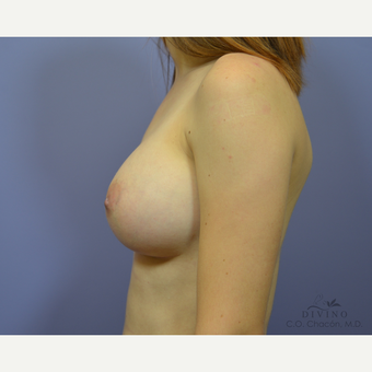 25-34 year old woman treated with Breast Augmentation after 3329384