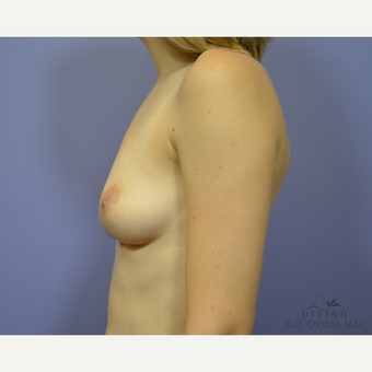 25-34 year old woman treated with Breast Augmentation before 3329384