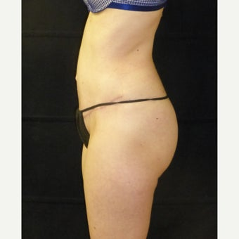 35-44 year old female treated with Tummy Tuck after 2222681