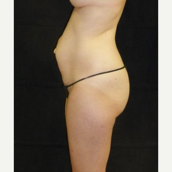 35-44 year old female treated with Tummy Tuck before 2222681