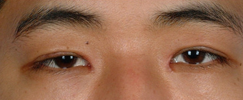 Asian Blepharoplasty after 857912