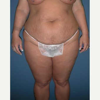 45-54 year old woman treated with Tummy Tuck before 2911891
