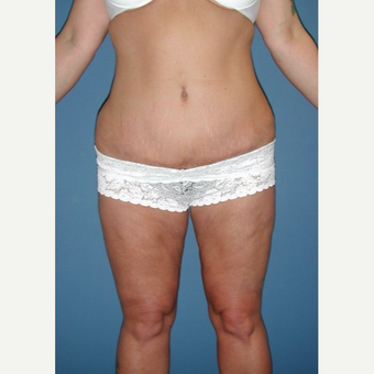 45-54 year old woman treated with Tummy Tuck after 2911891