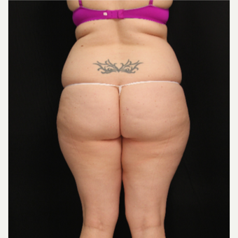 32 year old female with liposuction of abdomen and hips before 3576116