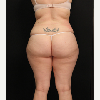 32 year old female with liposuction of abdomen and hips after 3576116