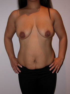 Mummy Makeover - abdominoplasty and breast augmentation before 994009