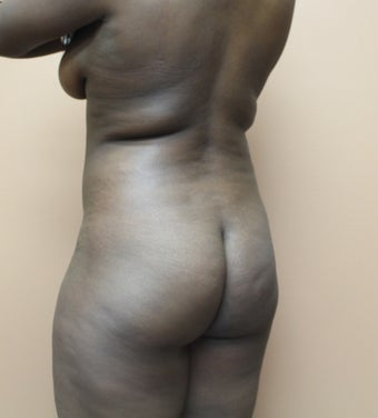 25-34 year old woman treated with Brazilian Butt Lift 3338840