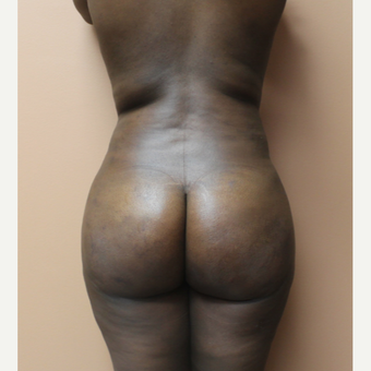 25-34 year old woman treated with Brazilian Butt Lift after 3338840