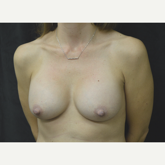 35-44 year old woman treated with Breast Implants after 3181782