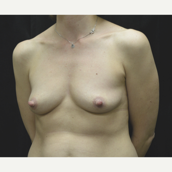 35-44 year old woman treated with Breast Implants before 3181782
