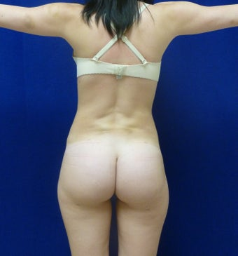 Brazilian Butt Lift after 367232