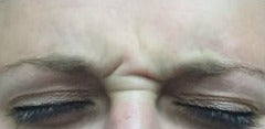 25-34 year old woman treated with Botox before 3332780