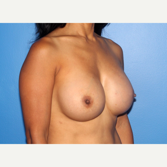 35-44 year old woman treated with Breast Implant Revision after 3246561