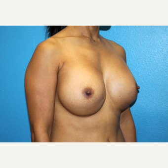 35-44 year old woman treated with Breast Implant Revision before 3246561