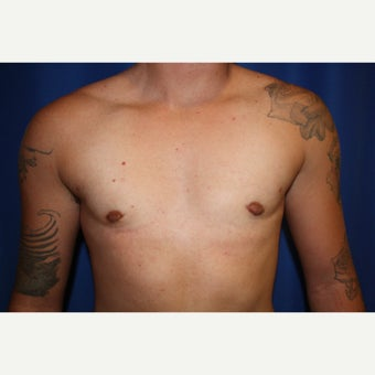18-24 year old man treated with FTM Chest Masculinization Surgery after 2115543