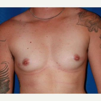 18-24 year old man treated with FTM Chest Masculinization Surgery before 2115543