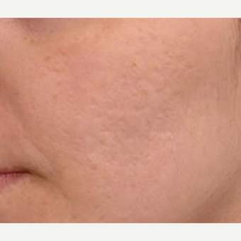 35-44 year old woman treated with Microneedling