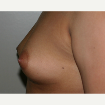 25-34 year old woman treated with Breast Implants before 3153939