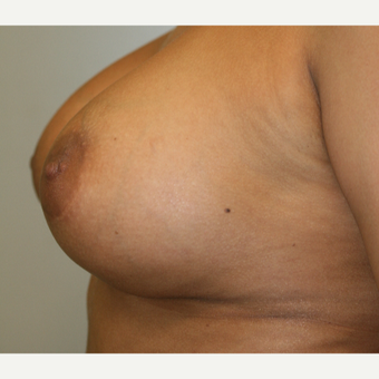 25-34 year old woman treated with Breast Implants after 3153939