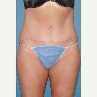 35-44 year old woman treated with No-Drain Tummy Tuck after 3649368