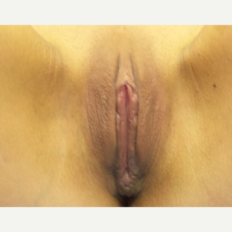 18-24 year old woman treated with Labiaplasty after 3065683