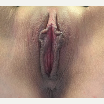 18-24 year old woman treated with Labiaplasty before 3065683
